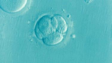 無麻酔で採卵って とっても痛そうだけど、 どうなんですか?