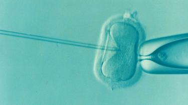 精子の運動率が悪くても人工授精を続けるべき?顕微授精での可能性は?
