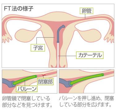 卵管の両側閉塞のため FTを検討中