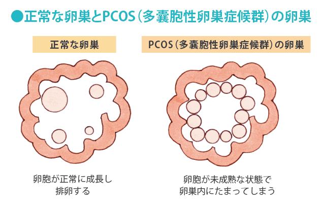 多 嚢胞 性 卵巣 症候群 pcos