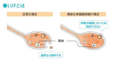 LUF(黄体化未破裂卵胞)について